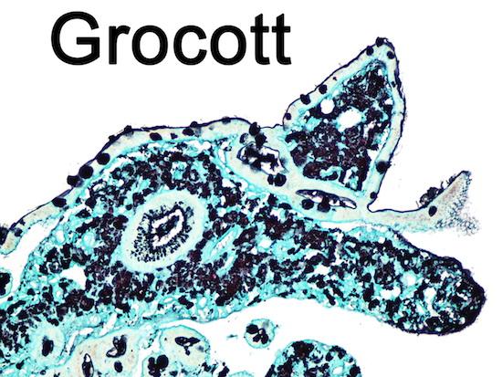 Histochemie Diagnostik Grocott Pathologie Schweinfurt