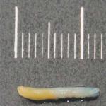 Pathologie Schweinfurt makroskopisch-pathologische Begutachtung