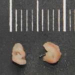 Pathologie Schweinfurt Makroskopie Untersuchung