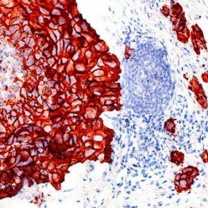 Immunzytochemie der Pathologie Schweinfurt