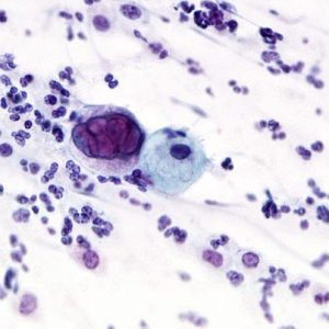 Pathologie Schweinfurt Genitale Zytologie